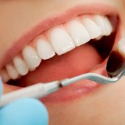 dental-cleanings-trident-general-dentistry