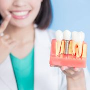 dental-implants-charleston-dentist