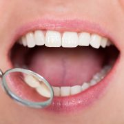 Tooth-Colored-Fillings-Charleston-Dentist