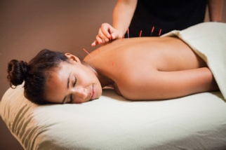 Accupuncture Specialaist in Los Angeles