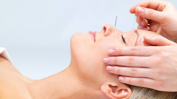 Accupuncture Specialaist in Thousand Oaks