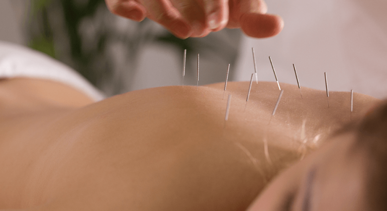 Accupuncture at TMJ and Sleep Therapy Center