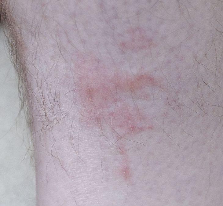 Bedbug_bites_on_human