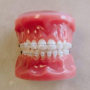 clear braces model