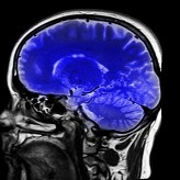 Fitness Tips to Improve Your Brain Power