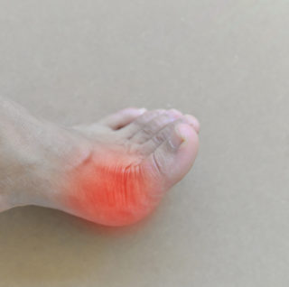 surgery for bunions by podiatrist in Boca Raton. These are the best foot care specialists in Palm Beach County