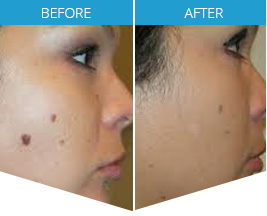 SKIN TAGS? The All Natural, Pain Free Way to Remove Unsightly Skin Tags – Fast, Less Cost