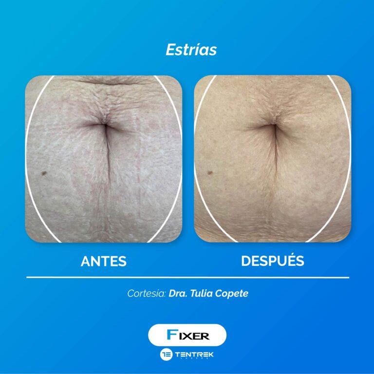 Dra Tulia Copete_Mesa de trabajo 1 copia 5