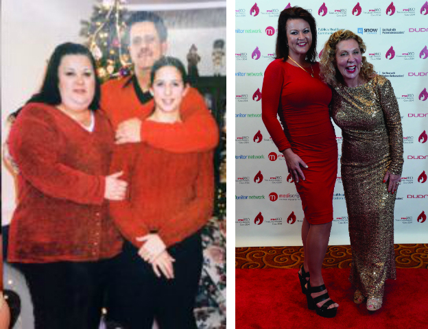 My Bariatric Life before and after WLS PS