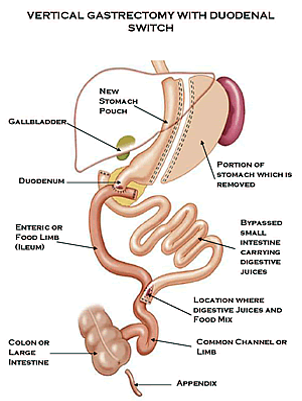 Duodenal Switch Risks