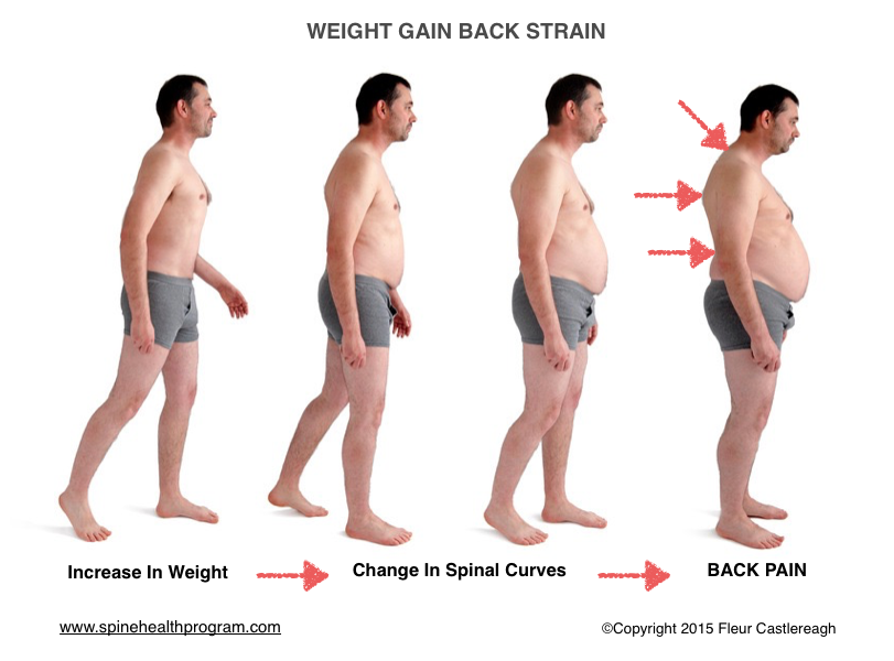 obesity and back pain
