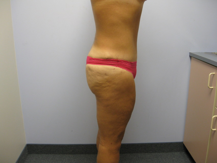 tummy tuck after bariatric surgery