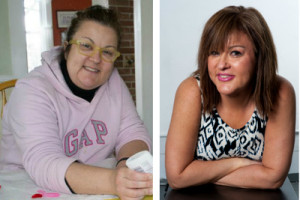 facelift surgery after major weight loss