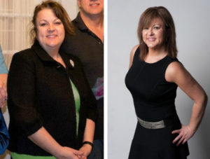 my-bariatric-life-before-and-after-plastic-surgery-joseph-capella-md