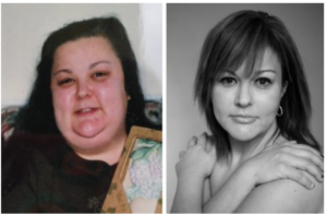my facelift after weight loss before and after