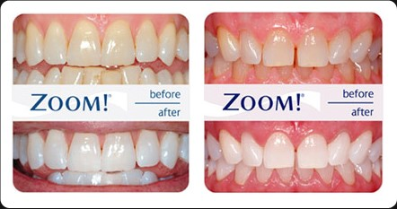 By Design Dental Now Offers Teeth Whitening with Philips Zoom WhiteSpeed