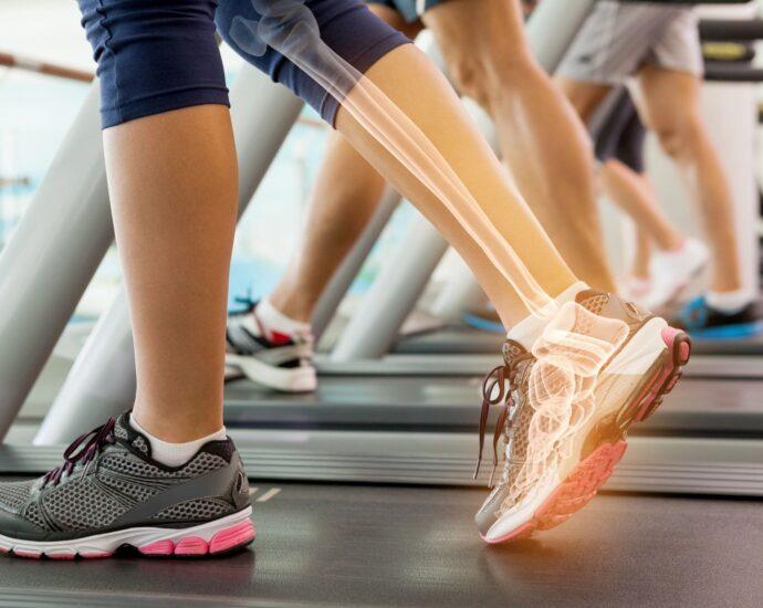 x-rayed foot on treadmill