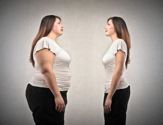 woman looking at herself before and after significant weight loss
