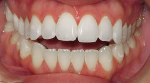 IMPROVING A BITE RELATIONSHIP WITH LINGUAL BRACES - BEFORE