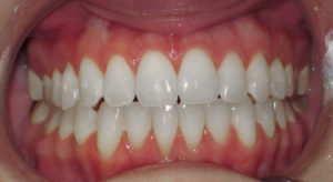 IMPROVING A BITE RELATIONSHIP WITH LINGUAL BRACES - AFTER