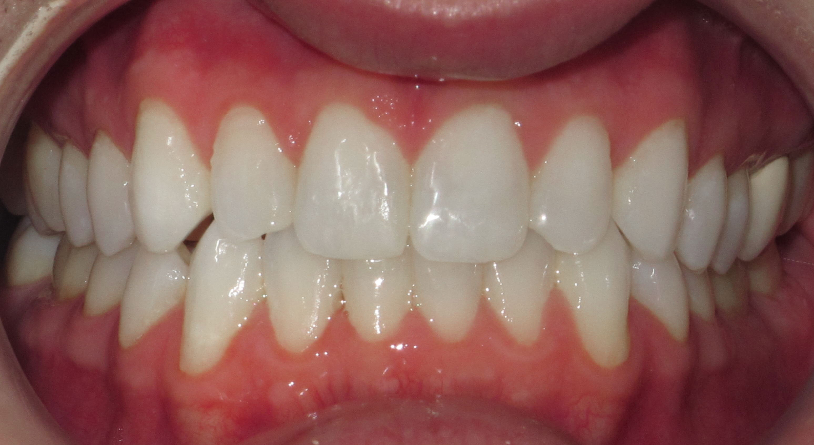 IMPROVING AESTHIC ALIGNMENT WITH LINGUAL BRACES - BEFORE