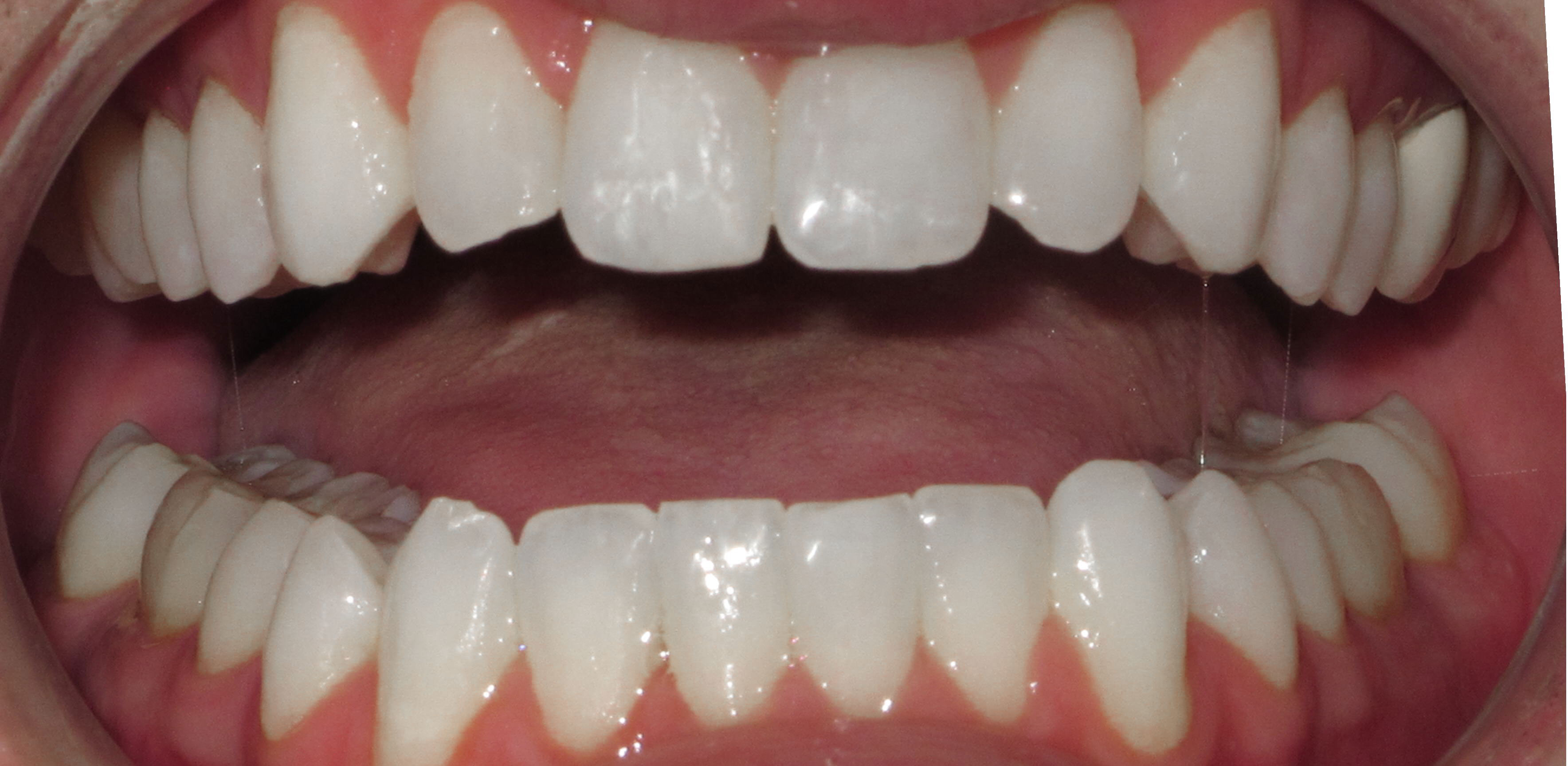 IMPROVING AESTHIC ALIGNMENT WITH LINGUAL BRACES - AFTER
