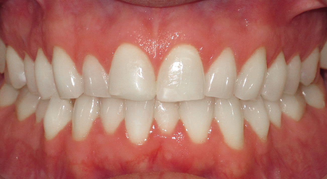 FIXING ALIGNMENT WITH BRACES - BEFORE