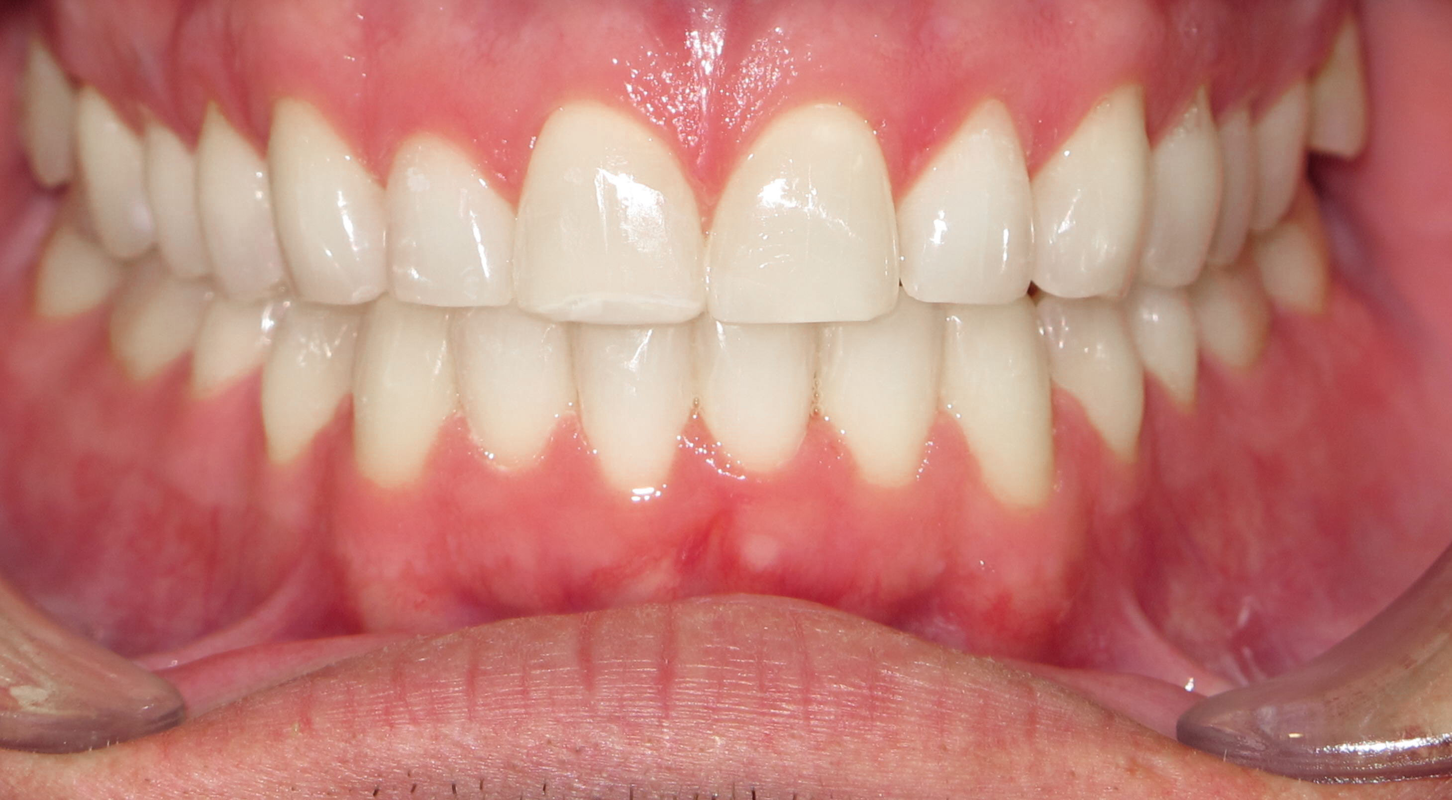 FIXING ALIGNMENT WITH BRACES - AFTER