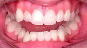 ELIMINATING TEETH CROWDING WITH LINGUAL BRACES - BEFORE