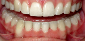 ELIMINATING TEETH CROWDING WITH LINGUAL BRACES - AFTER