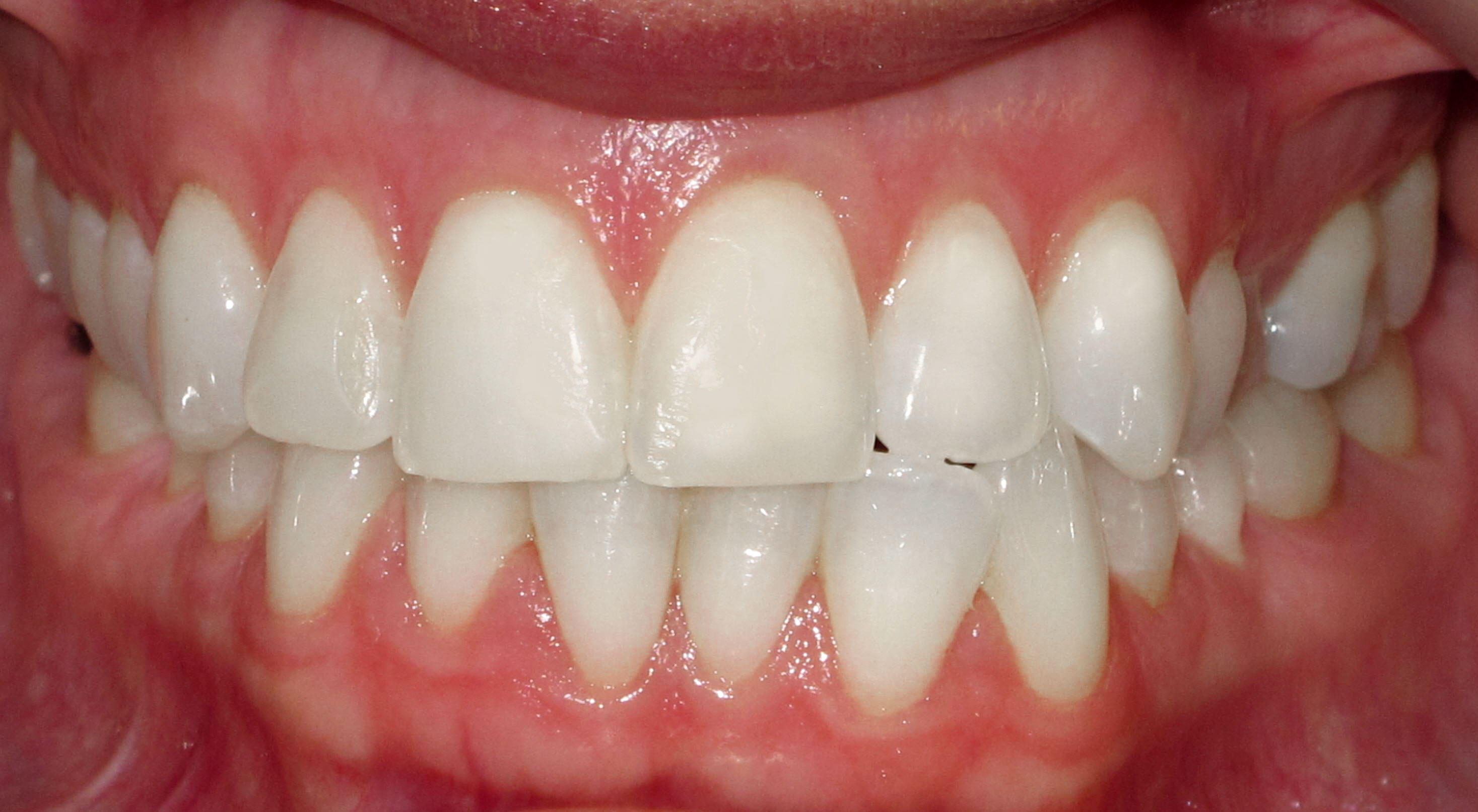 LINGUAL BRACES FOR A WIDER SMILE - BEFORE