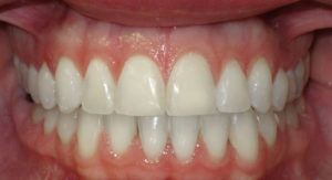 LINGUAL BRACES FOR A WIDER SMILE - AFTER