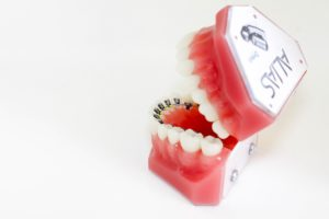 The History of Lingual Braces - The Alias Lingual System