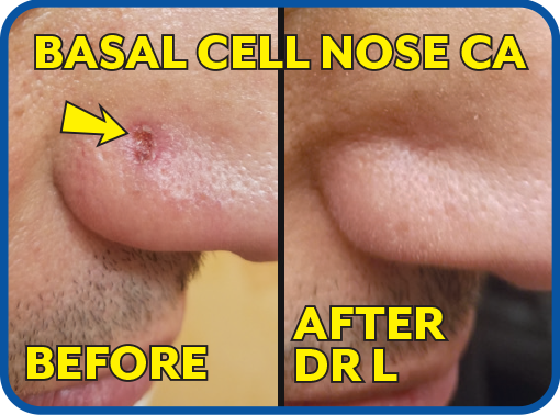 Basal Cell On Nose