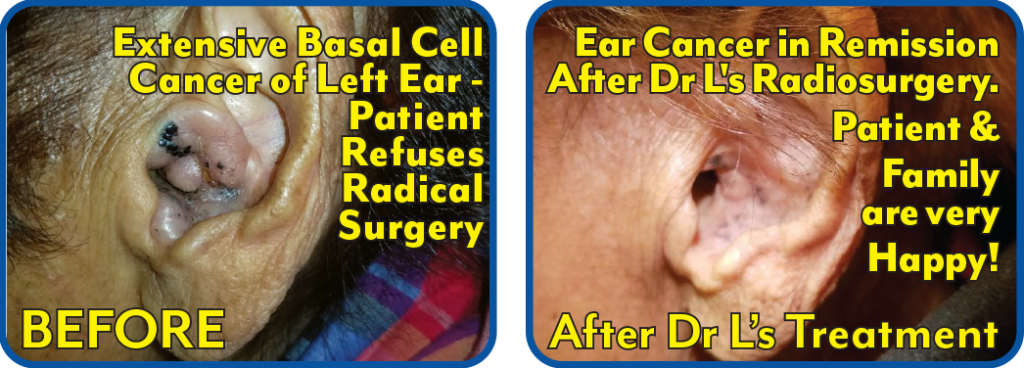 Ear Basal Cell Cancer