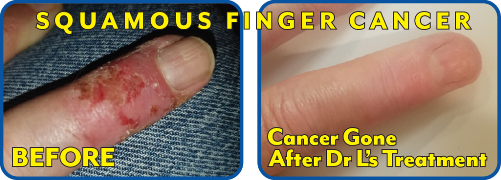 Squamous Finger Cancer