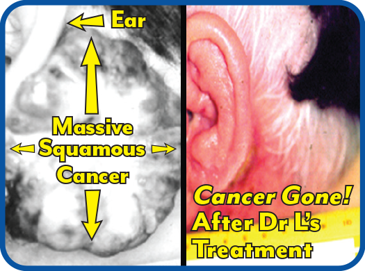 Massive skin cancer, much larger than ear, she chose Dr L's treatment resulting in complete cancer disappearance!
