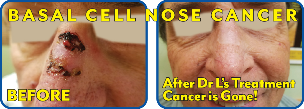 Basal Cell Nose Cancer