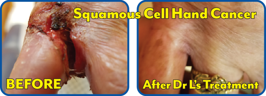 Squamous Cell HAnd Cancer