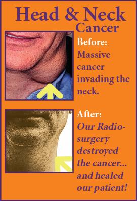 Head & Neck Cancer