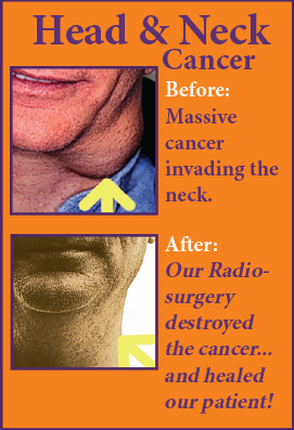 Head & Neck Cancer