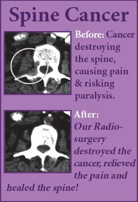 Spine Cancer