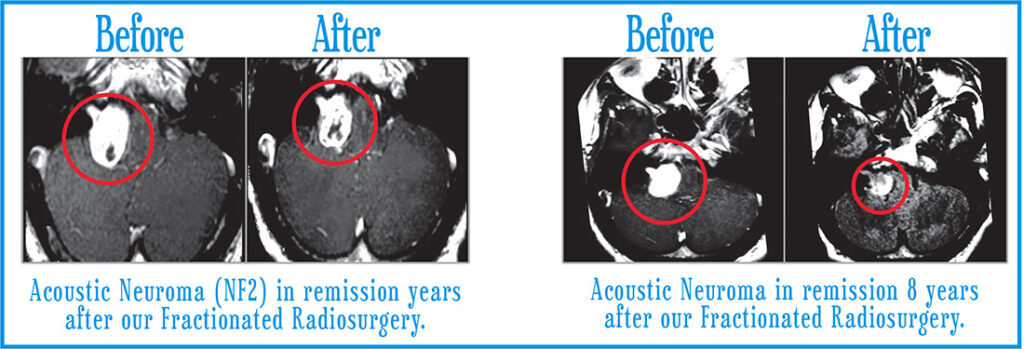 Acoustic Neuromas Before After 2