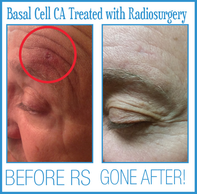 Basal Cell Cancer Before After Radiosurgery
