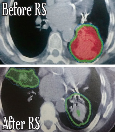 Bilateral Lung Cancer
