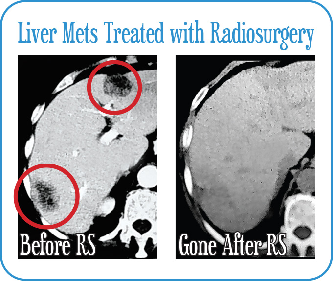 Liver Mets Treated with Radiosurgery
