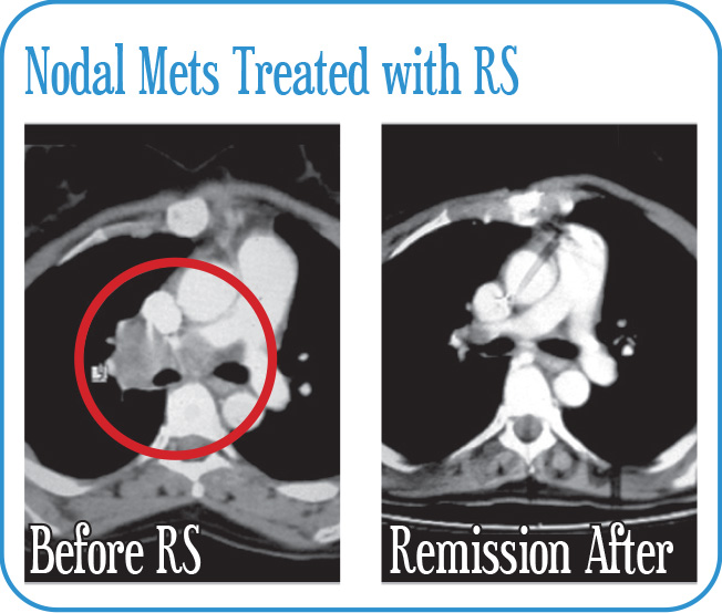 Nodal Mets Treated with RS