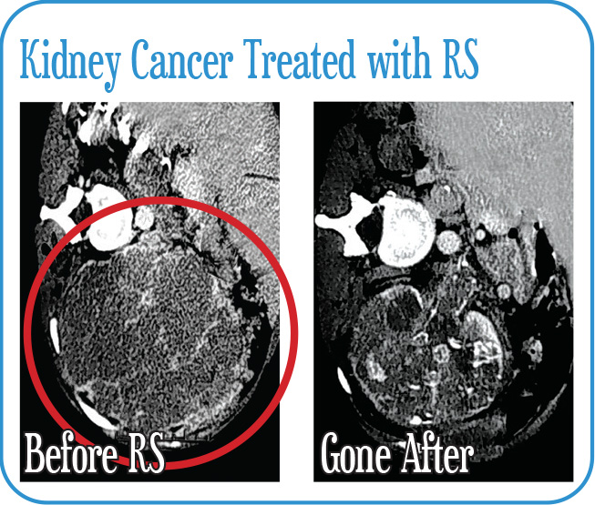 Kidney Cancer Treated with RS