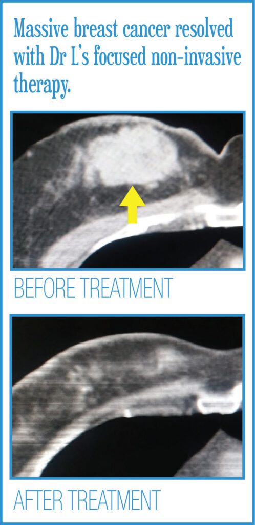 Body Radiosurgery Before After