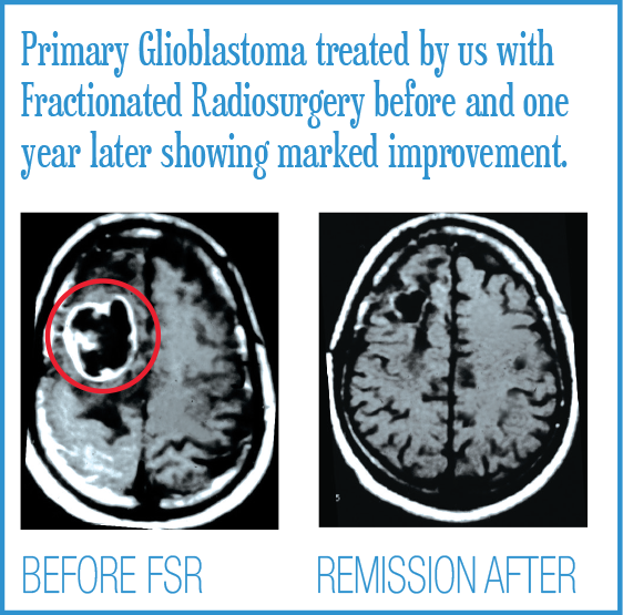 Primary Glioblastoma